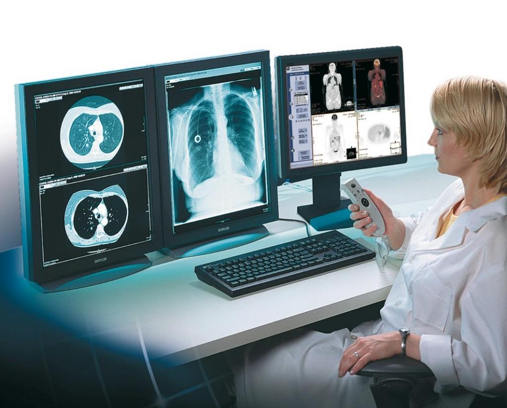 Врач рентгенолог исследует снимок грудной клетки