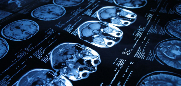 Рентгенология — что это?