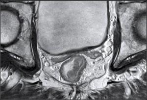 рак кишки МРТ 2 стадия