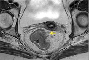 рак кишки МРТ 3 стадия
