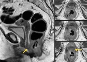 рак кишки МРТ 4 стадия