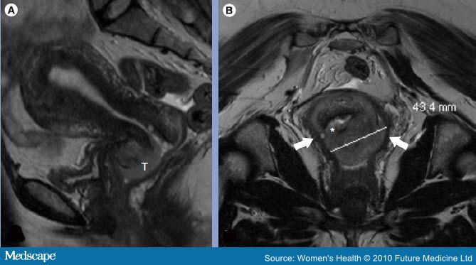 рак шейки матки 2 стадия