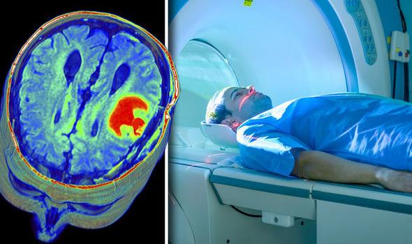MRI-Scan-598382
