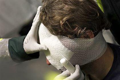 Компьютерная томография при черепно-мозговой травме
