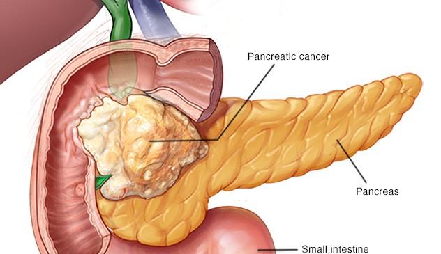 КТ и МРТ в диагностике рака поджелудочной железы