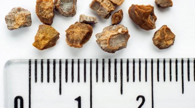 Диагностика камней в почках. Рентгенография и КТ