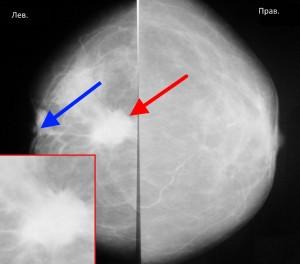 Расшифровка маммографии молочных желез 9