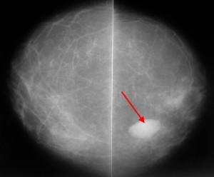 Расшифровка маммографии молочных желез 31