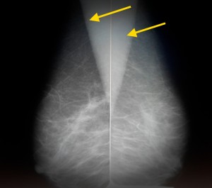 Расшифровка маммографии молочных желез 8