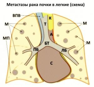 мтс_в_легкие