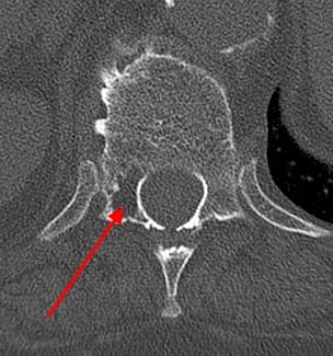 Гемангиома позвоночника, гемангиома поясничного отдела позвоночника, гемангиома позвоночника мрт, гемангиома позвоночника нужна ли операция, гемангиома позвоночника кт