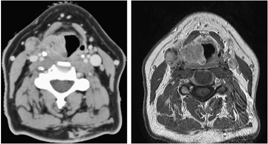 рак горла МРТ