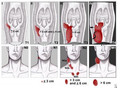 стадии рака гортани
