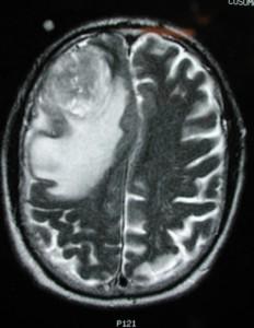 глиобластома томография