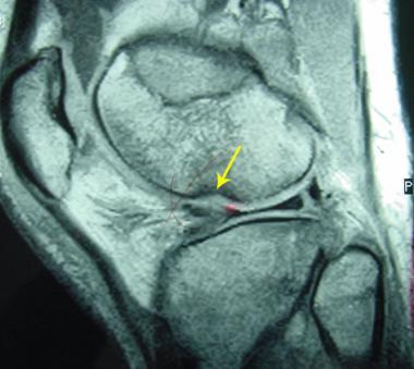 перелом мыщелка