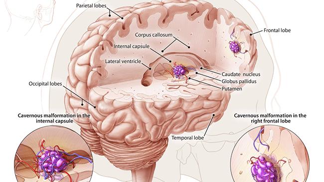 Кавернозная ангиома головного мозга лечение и диагностика
