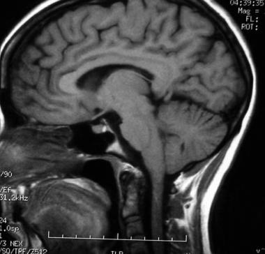 аденома гипофиза МРТ