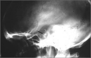 рентгенография турецкого седла