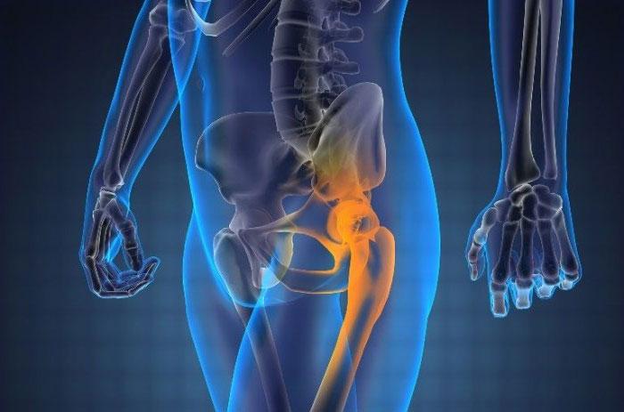 Метастазы в костях ноги