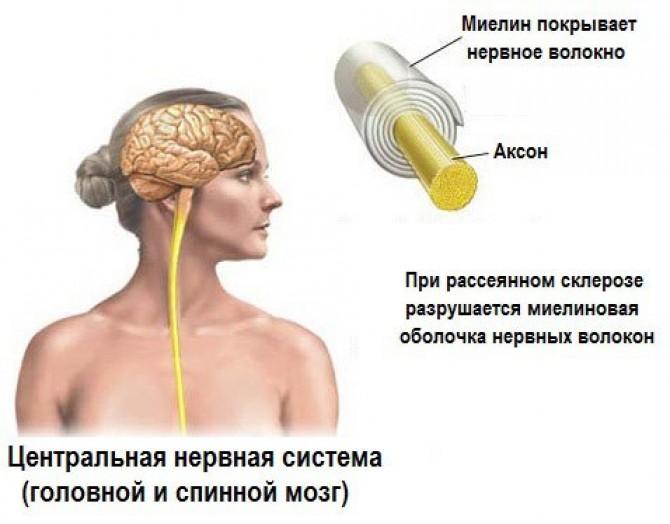 Влияние рассеяного склероза на нервные волокна