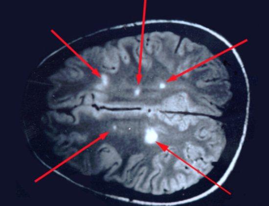 Бляшки на МРТ мозга