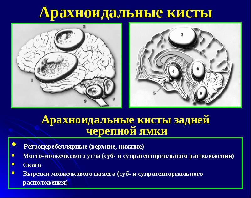 Арахноидальная киста головного мозга угрозы