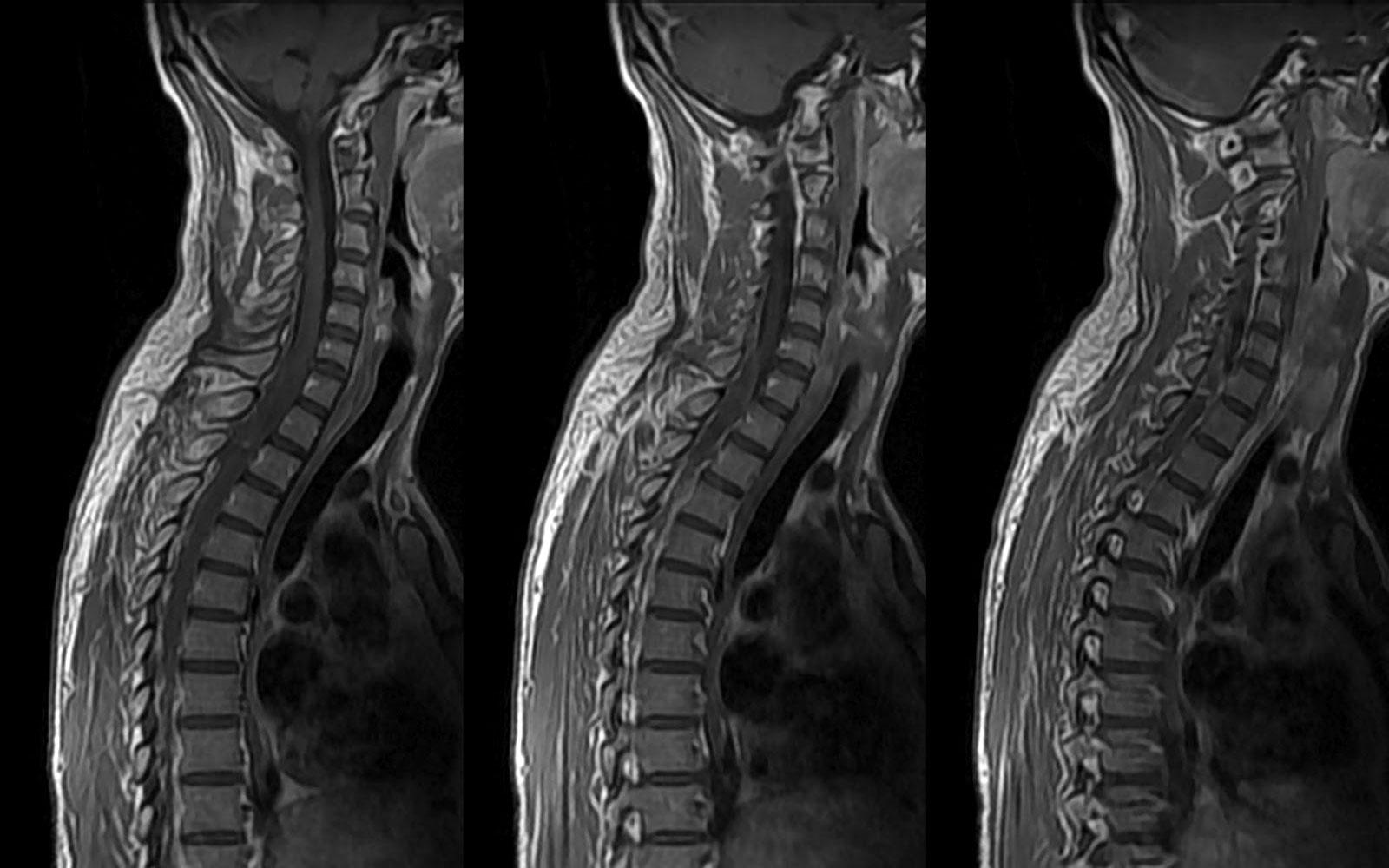 Вреден ли рентген позвоночника