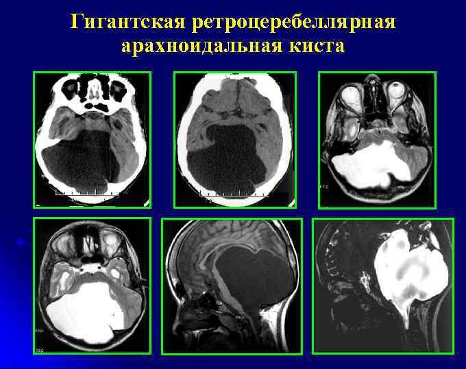 Киста головного мозга мрт