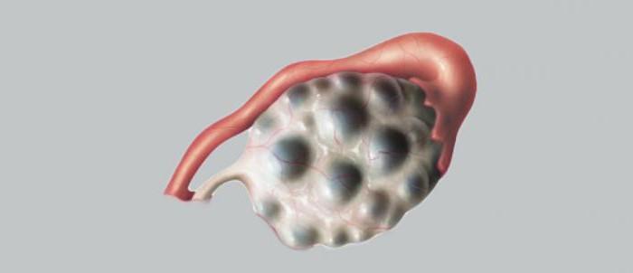 Классификация кист яичника ВТОРОЕ МНЕНИЕ