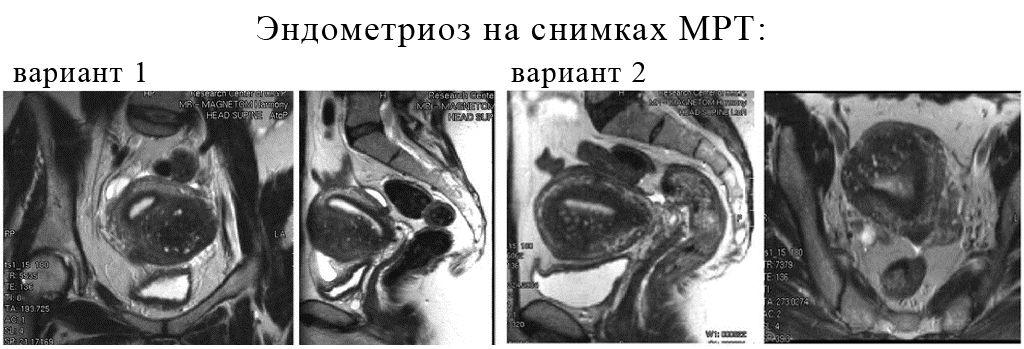 МРТ при эндометриозе эффективна ли диагностика