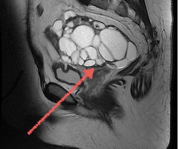МРТ яичников и матки что показывает при раке