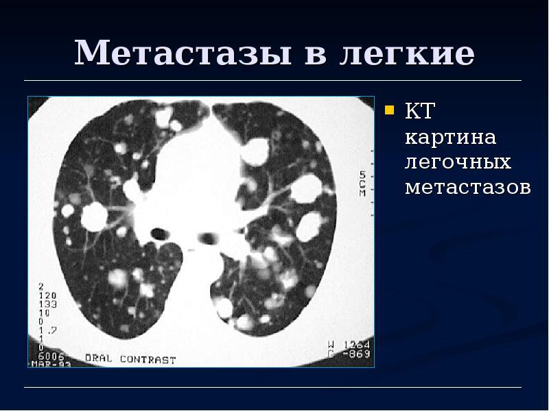 Метастазы в легких. Что такое, симптомы и лечение