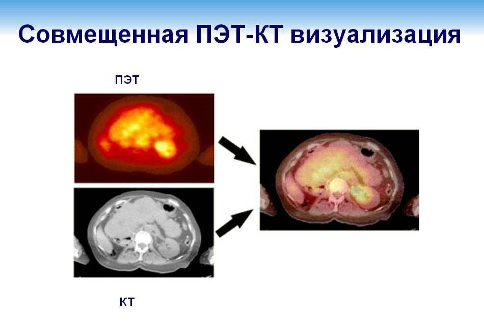Позитронно-эмиссионная томография ...что это