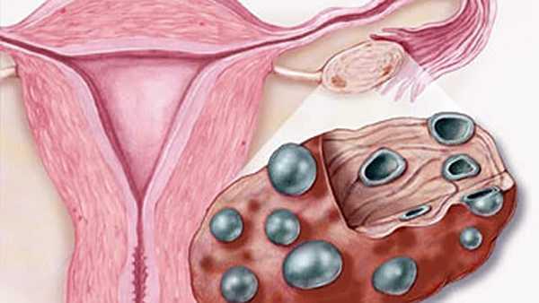 Поликистоз яичников причины возникновения