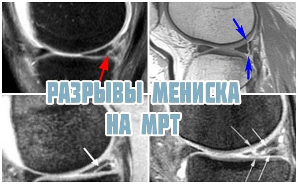 Разрыв мениска коленного сустава2