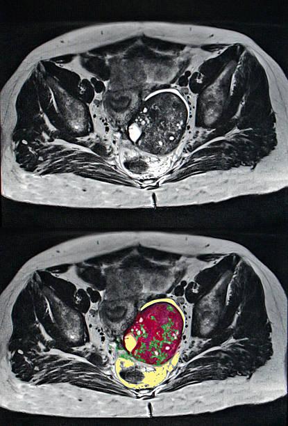 Рак яичников...