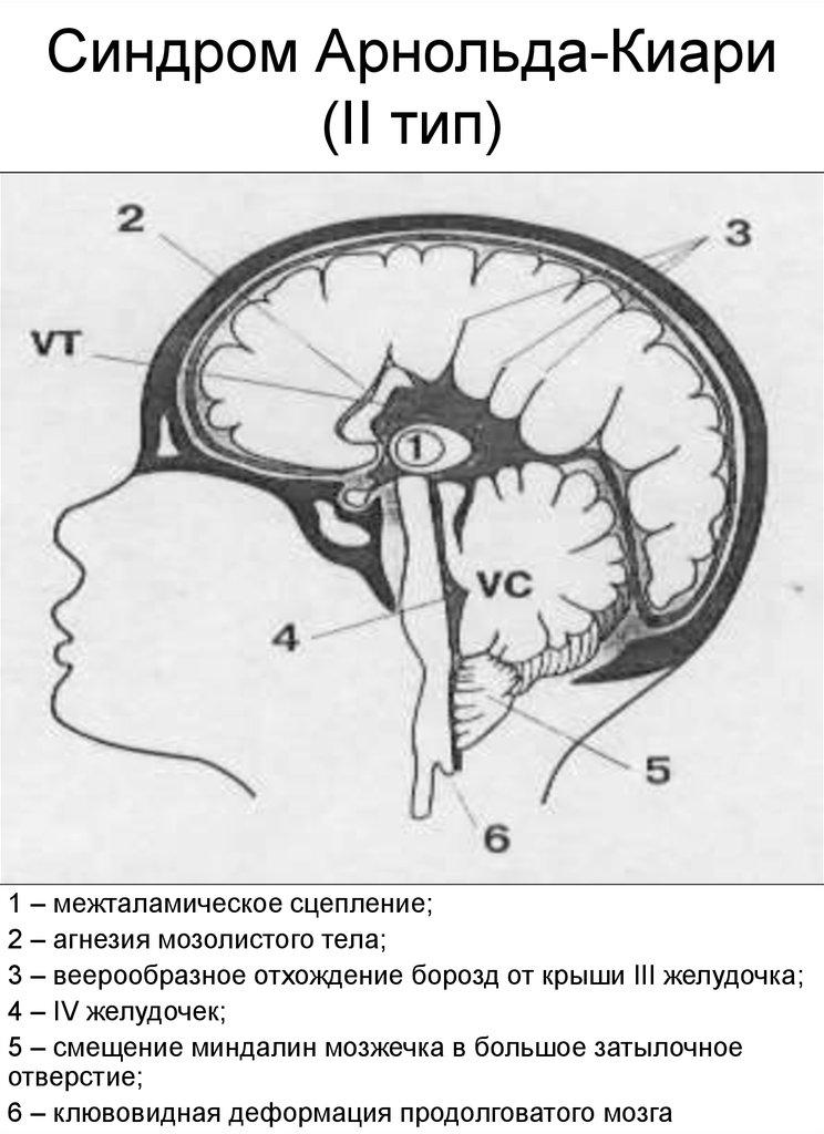 Что такое синдром Арнольда-Киари 2 тип