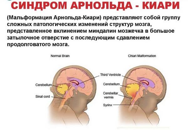 Что такое синдром Арнольда-Киари