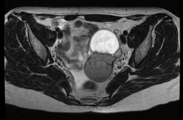 Эндометриоз и его диагностика МРТ