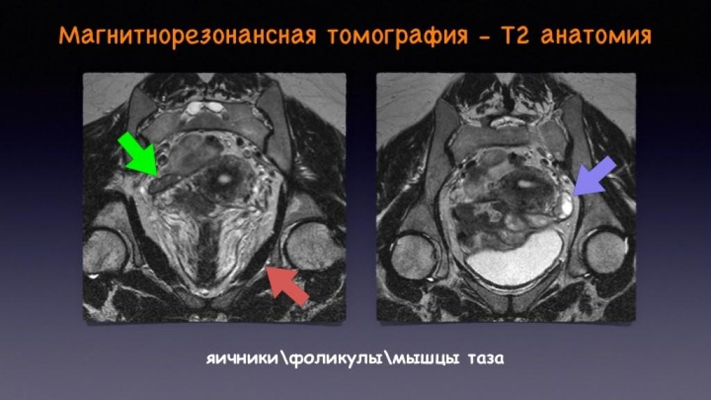 Эндометриоз томография