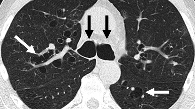 метастазы в легких