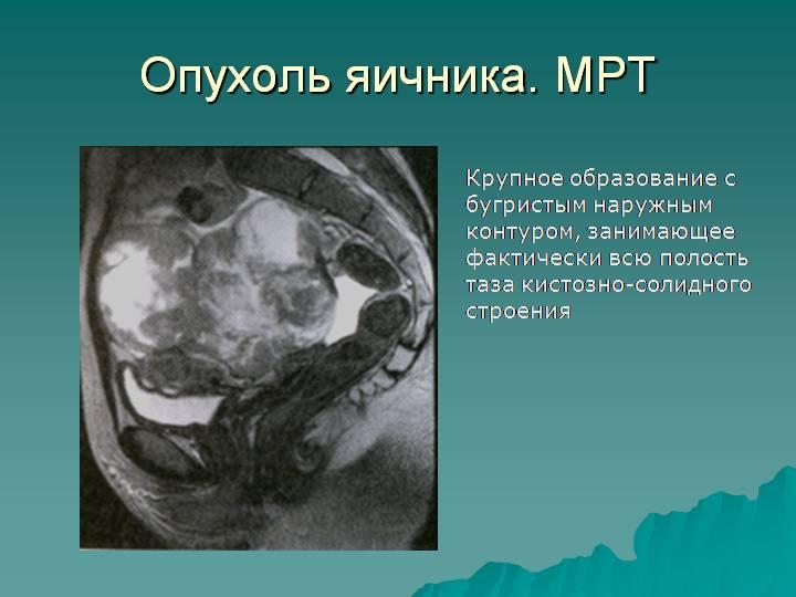 симптомы рака яичника на ранней стадии