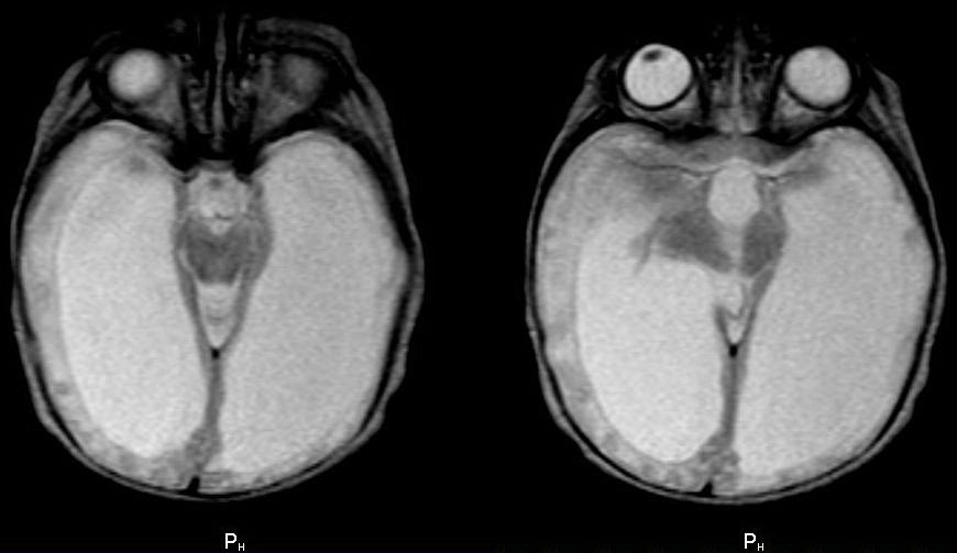 МРТ головы. Новорожденная девочка