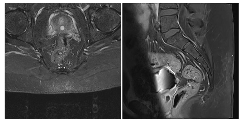 Ретенционная киста предстательной железы