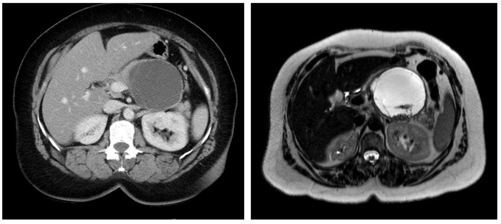 Паренхиматозная киста поджелудочной железы