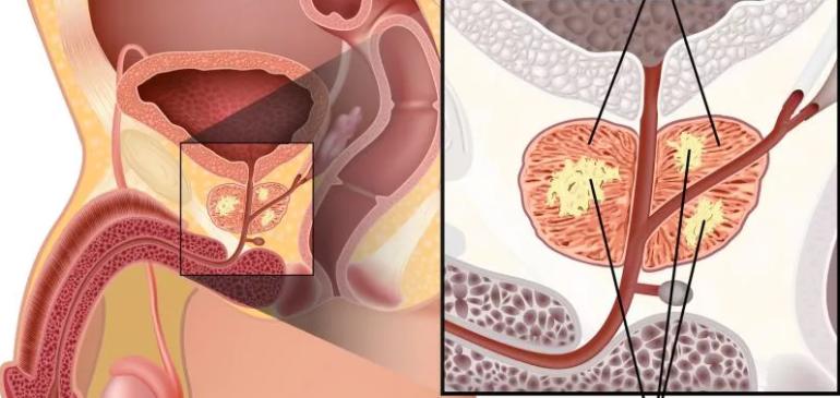 Рак простаты. Диагностика, скрининг. МРТ и описание по PI-RADS